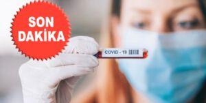 COVİD19 aşı üretimine başlıyorlar…